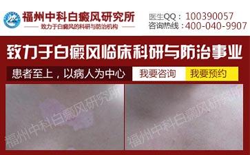 漳州白癜风要多少钱