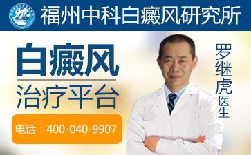 白癜风症状早期症状