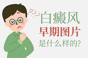 福州白癜风医院-早期白癜风怎么发现?